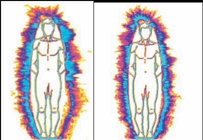 links: Mann, 1935 Prothese entnommen; rechts: Prothese 10 Minuten eingegliedert