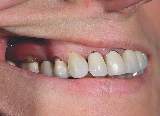 Nur an der neuen EMC Keramik Krone liegt das Zahnfleisch organisch an - der Eckzahn acht Monate später